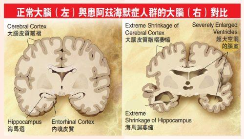正常大腦(左)與患阿茲海默症人群的大腦(右)對比